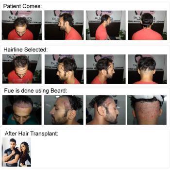 Metro hair transplant in Ambala