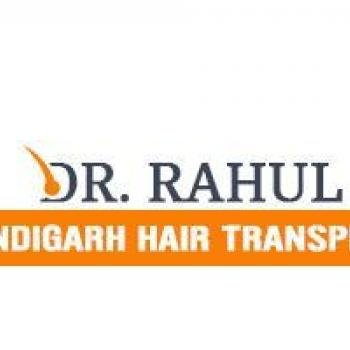 Hair Transplant in chandigarh, West Tripura