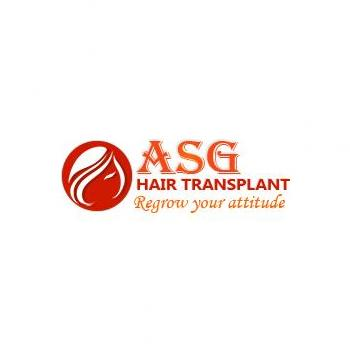 ASG Hair Transplant Centre in Ludhiana
