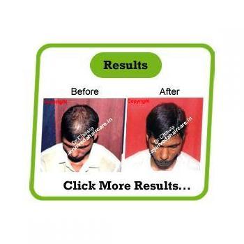 Ayurveda hair care in Amritsar