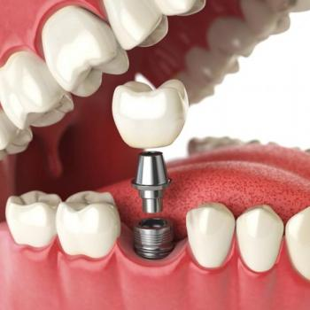 Dental Implant at Denta Care Dental Health Centre in Changanassery
