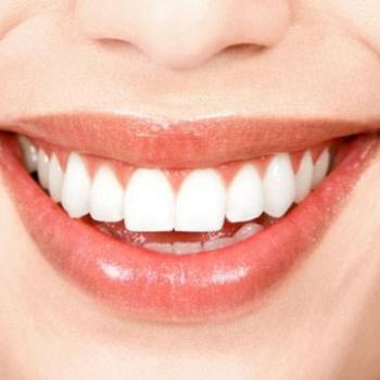 Crown And Bridge at Anugraha Smile Care in Cheruthoni