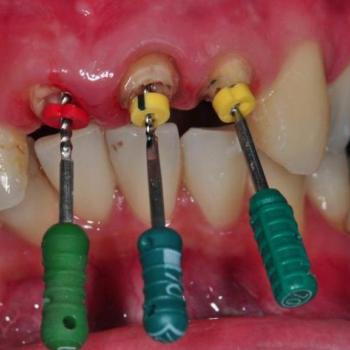 Root Canal Treatment at Anugraha Smile Care in Cheruthoni