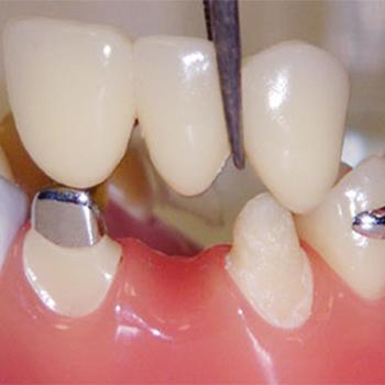 Crowns and bridges at Smile Dental Clinic in Kothamangalam