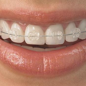 Orthodontic treatment at Smile Dental Clinic in Kothamangalam