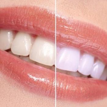 Tooth whitenining at Smile Dental Clinic in Kothamangalam