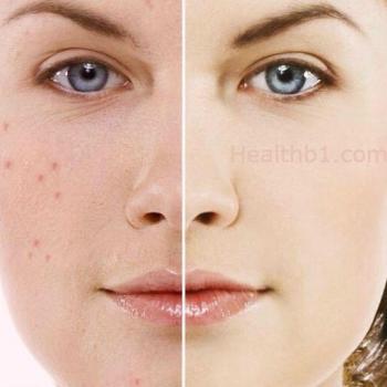 Pimple Treatment at Dream Girl Beauty Spa & Tailoring in Kalloorkkad