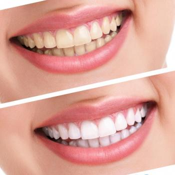 Tooth Whitening at Periyappuram Dental Soultion in Kottappady