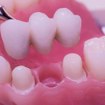 Crowns and bridges at Periyappuram Dental Soultion in Kottappady
