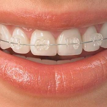 All Types Of Orthodontic Treatment at Mary Matha Orthodontic & Implant Dental clinic in Thodupuzha