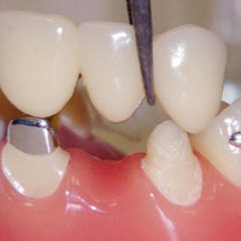 Crown and Bridges at Mary Matha Orthodontic & Implant Dental clinic in Thodupuzha