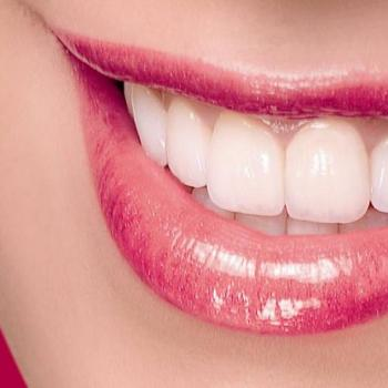 Esthetic Dentistry at Mary Matha Orthodontic & Implant Dental clinic in Thodupuzha