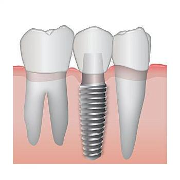 Implants at Mary Matha Orthodontic & Implant Dental clinic in Thodupuzha