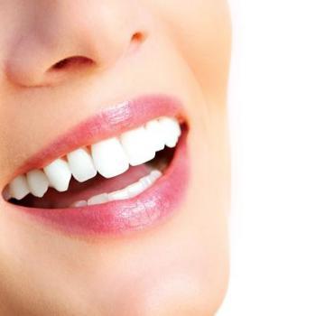 Teeth Whitening at AL SHIFA DENTAL CLINIC in Perumbavoor