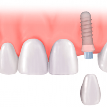 implants at Kulangara Tooth Care in Changanassery