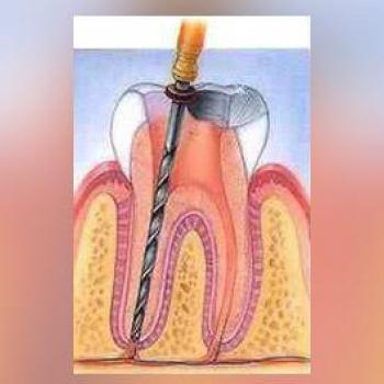 Root Canal Treatment at Kulangara Tooth Care in Changanassery