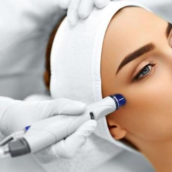 Micro Dermabrasion at Lotus Beauty Clinic in Changanassery