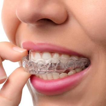 Orthodontics at Denta Care Dental Health Centre in Changanassery