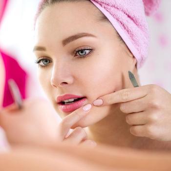 Pimple Treatment at Dream Style in Thodupuzha
