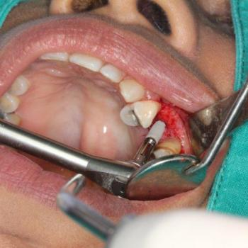 Minor Oral Surgery at Anugraha Smile Care in Cheruthoni