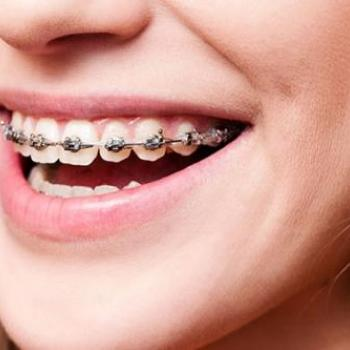 Orthodontics without Age Limit at Anugraha Smile Care in Cheruthoni
