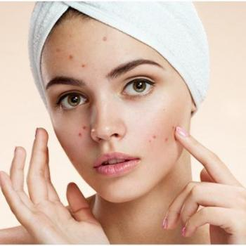 Pimple Treatment at Touch & Glow Ladies Beauty Clinic in Thiruvalla