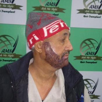 Beard & Eyebrow Hair Transplant at AMS Hair Transplant India  Best Fue Hair Transplant Center in Ludhiana