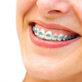 Dental Braces at Care well in Thodupuzha