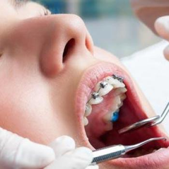 Orthodontics at Care well in Thodupuzha