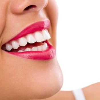 Teeth Whitening at Care well in Thodupuzha